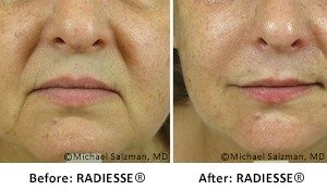Dermal Fillers | Advanced Laser MedSpa - Michael Salzman, M D