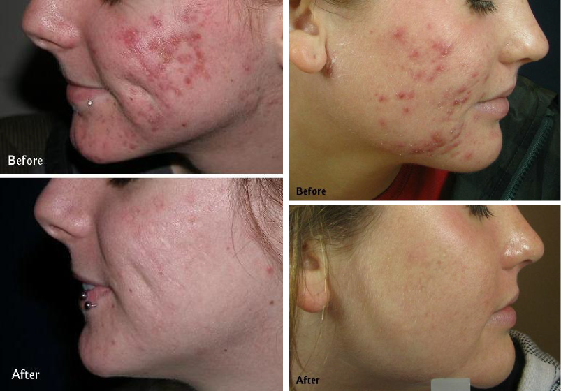 Laser services advanced laser medspa for Acne salon treatments