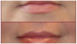 Dermal Filler Lips | Advanced Laser MedSpa - Michael Salzman
