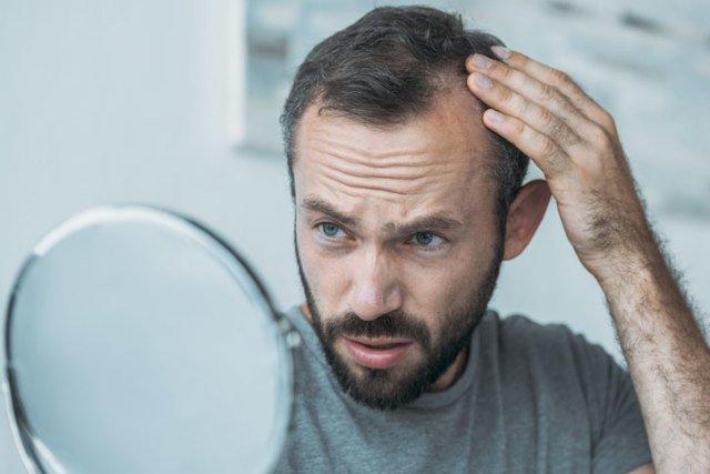 PRP Hair Rejuvenation